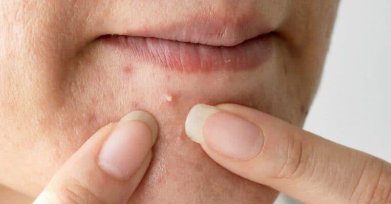 acne near mouth